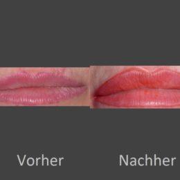 korr.lips-001